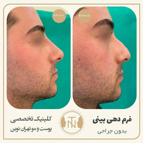 تغییر فرم بینی بدون جراحی